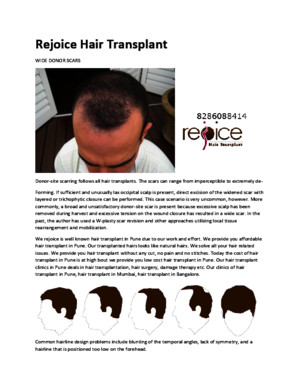 Hair transplant in pune|hair transplant cost in pune|hair transplant clinics in pune by seovipinlamba0123